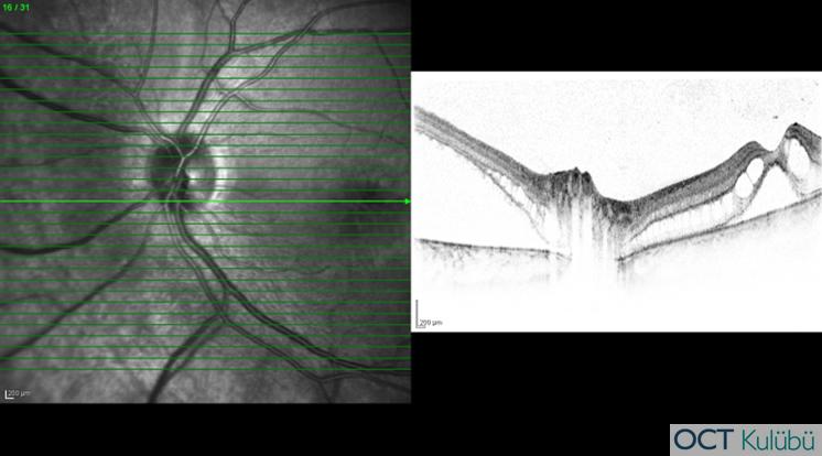 oct yırtıklı retina dekolmanı