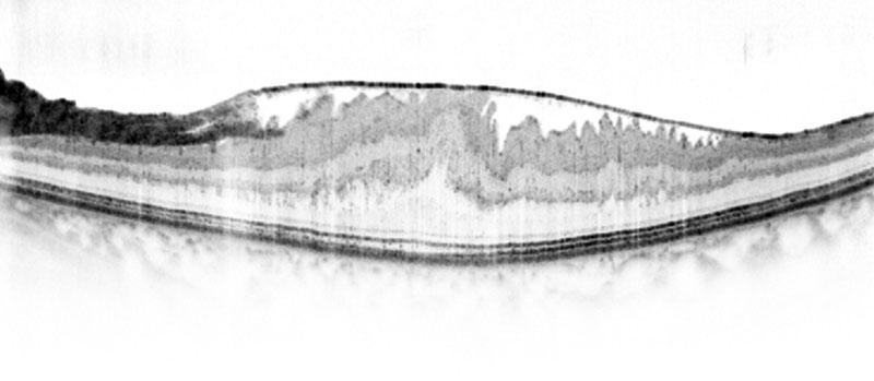 oct epiretinal membran