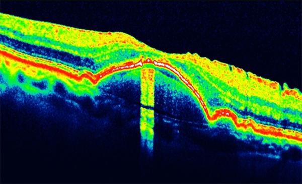 oct retina pigment epiteli dekolmanı