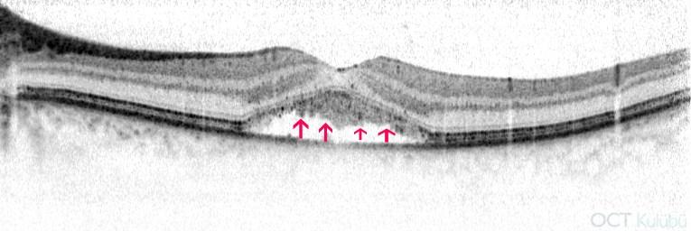 oct santral seröz koryoretinopati fotoreseptör dış segmentlerinde uzama