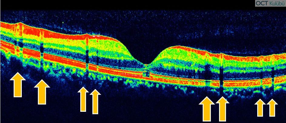 oct retina damar kesitine bağlı artefakt