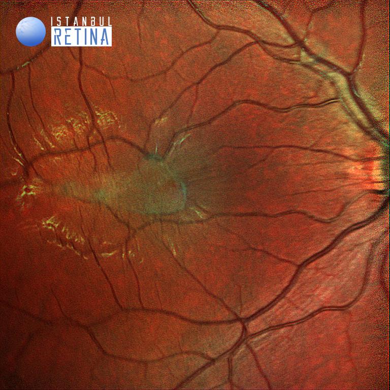 multicolor retinal hamartom