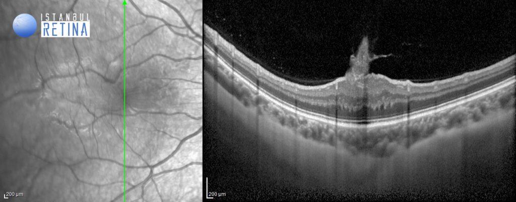 oct retinal hamartoma flame-shaped epiretinal membran