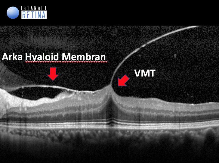 oct fovea distorsiyonu vitreomaküler traksiyon