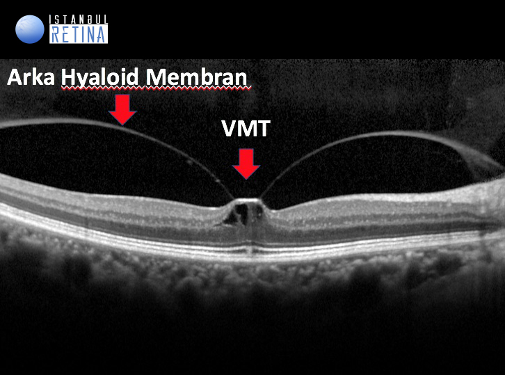 oct intraretinal kistik boşluk vitreomaküler traksiyon