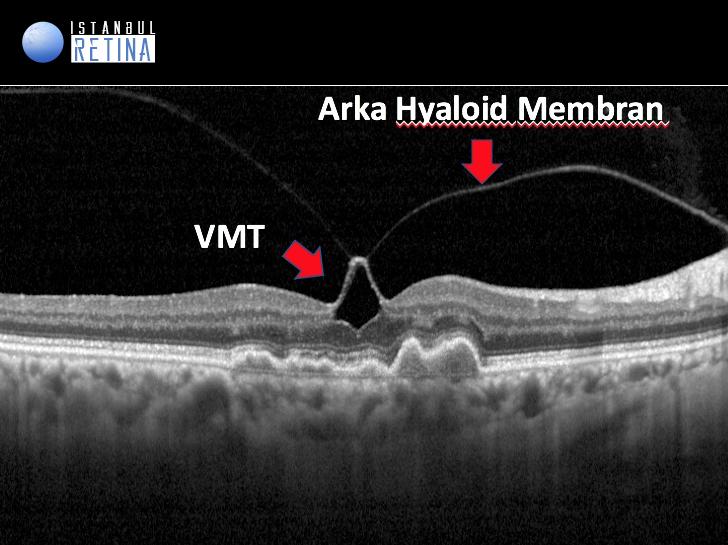 oct intraretinal psödokist vitreomaküler traksiyon